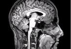 6.22.Brain_Scan