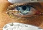 7.8.RobotStingray.eye-stingray-1280px