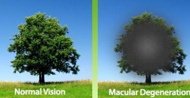 11.16.gut.macular-Degeneration