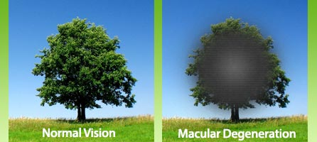 11.16.gut.macular-Degeneration